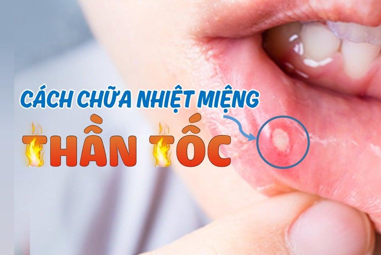 cách chữa nhiệt miệng nhanh ngay tại nhà